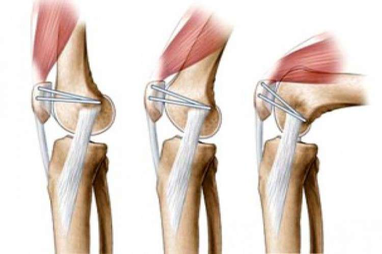 Acl reconstruction doctors in nashik