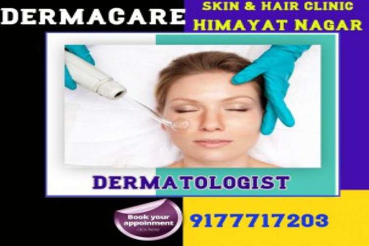 Acne treatment in himayat nagar dermatologist in himayat nagar