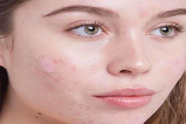Best acne treatment in ludhiana dr shikha aggarwal