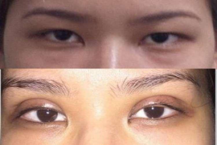 Best blepharoplasty doctor in delhi   divine cosmetic surgery