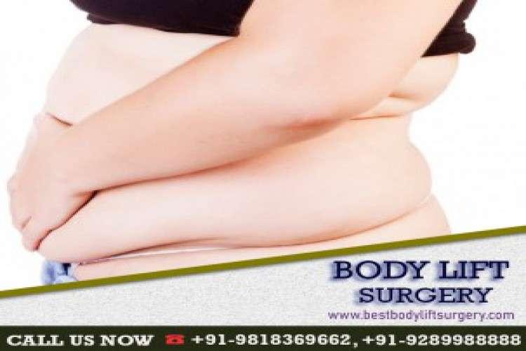 Best body lift surgery india