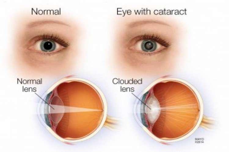 Best cataract surgeon in bangalore