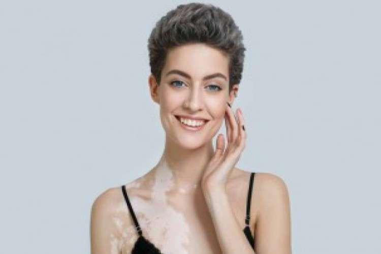 Best clinic for vitiligo treatment in ludhiana