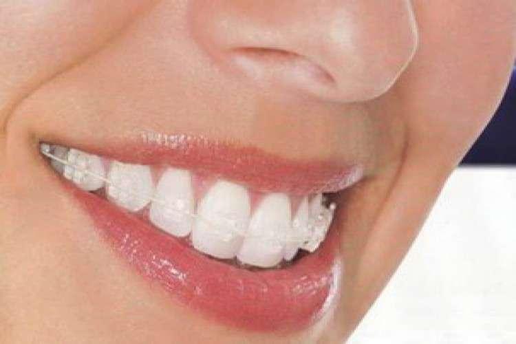 Best dental clinic in gurgaon aspen dentals