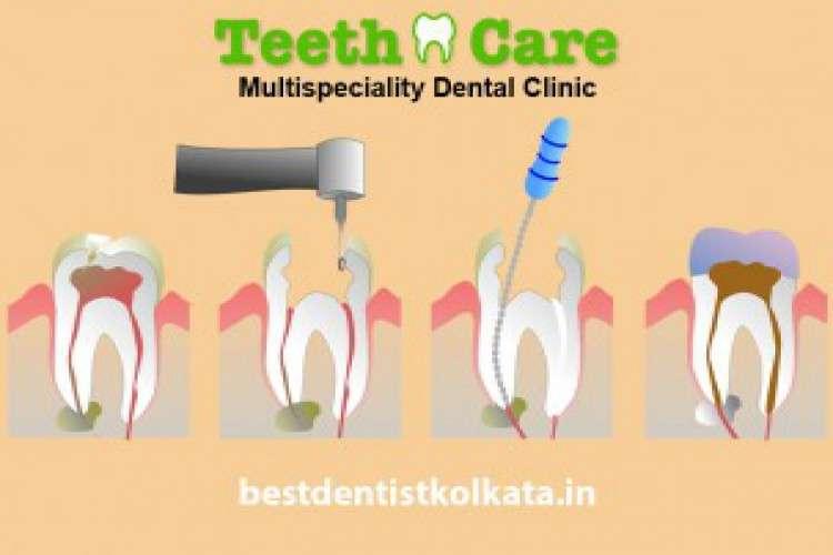 Best dental hospital in rajarhat