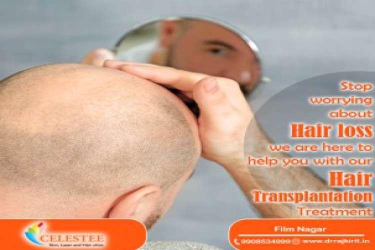 Best hair fall treatment hyderabad