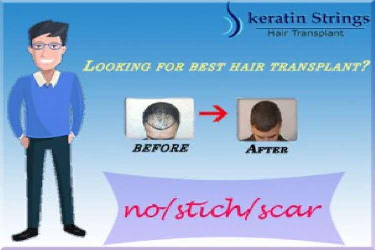 Best hair transplant clinic in noida   keratin