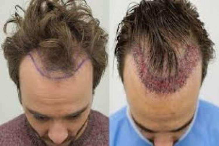 Best hair transplant in kochi