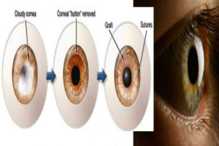 Best ophthalmologist in bangalore