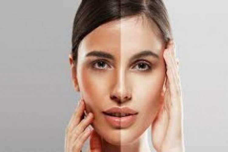 Best skin whitening treatment in himayat nagar derma care clinic