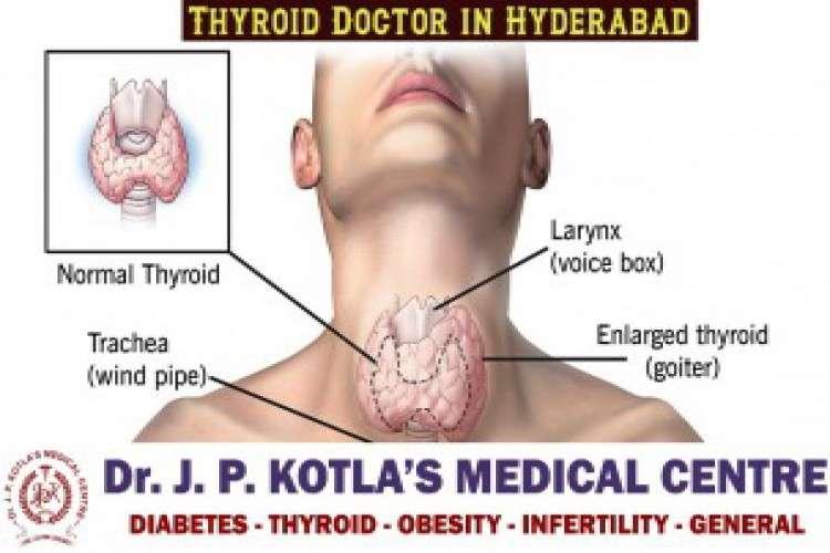 Best thyroid center in himayat nagar dr jp kotla medical centre
