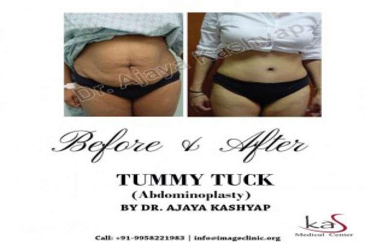 Best tummy tuck surgeon cost in south delhi