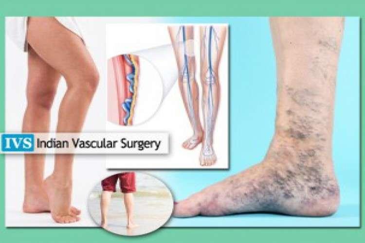 Best vascular vein specialist   indian vascular surgery