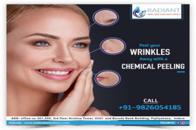 Chemical peeling treatment in indore