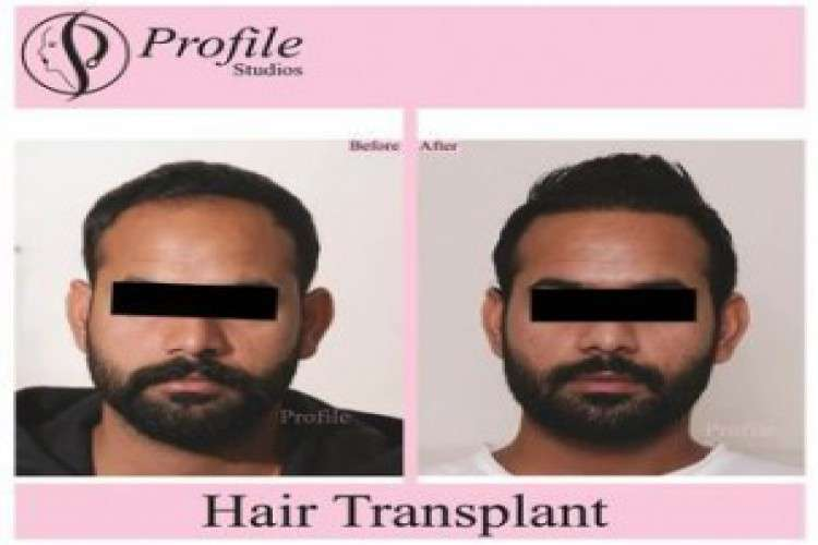Cost of hair transplant in punjab