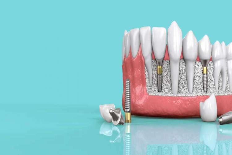 Dental clinic from coimbatore