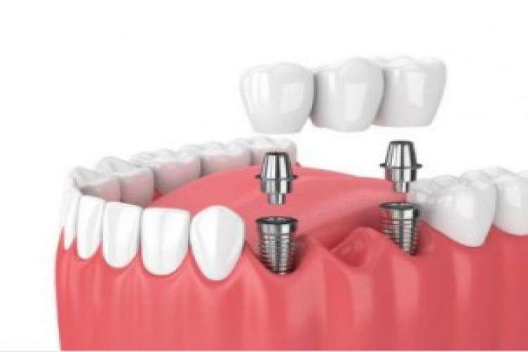 Dental implant cost in chennai   akeela dental care