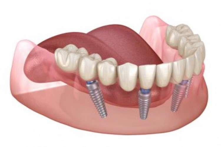 Dental implant in gurgaon golf course road alveo dental