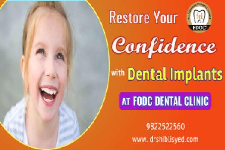dental-implant-in-pune_1360964.jpg