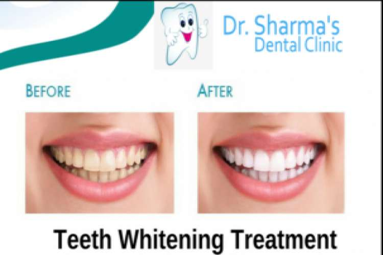 Dental implant services mohali and chandigarh