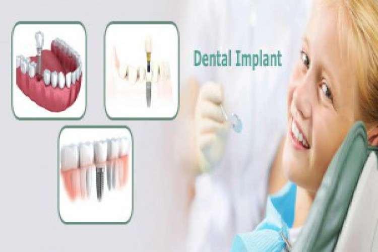 Dr alkesh v shah dental implant in ahmedabad