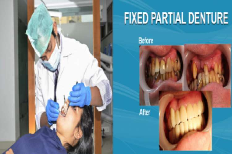 Dr chintan agrawal braces doctor in ahmedabad