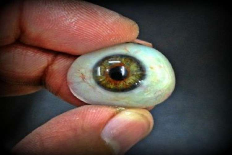 Eye prosthesis in india artificial eye transplant in india