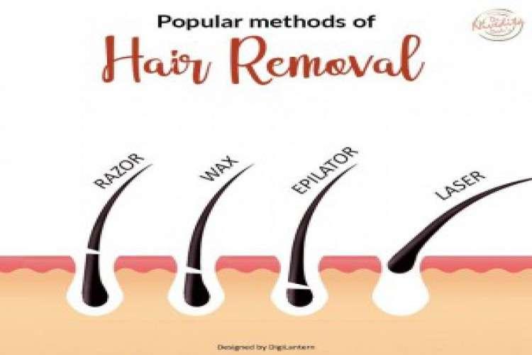 Full body laser hair removal cost in delhi