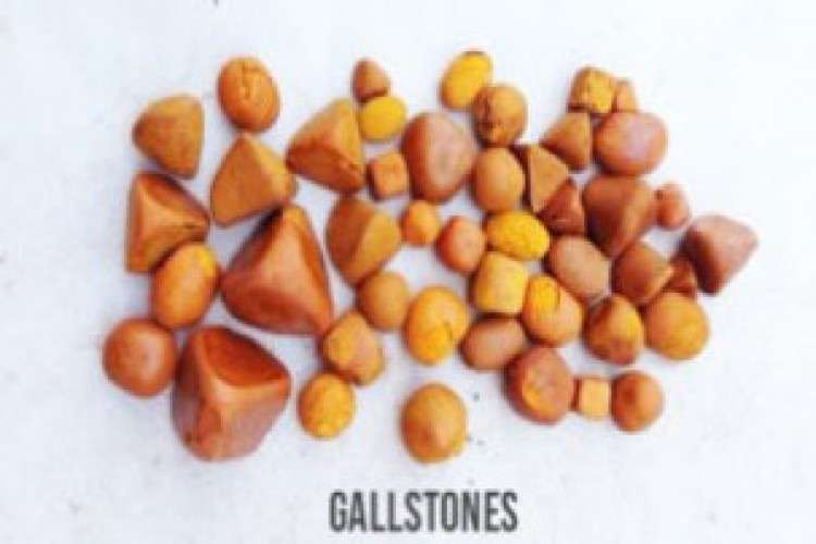 Gall bladder stones all you need to know