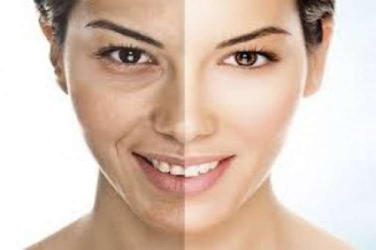 Get desire look with a cosmetic surgery