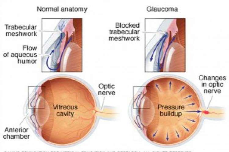 Glaucoma specialist in bangalore