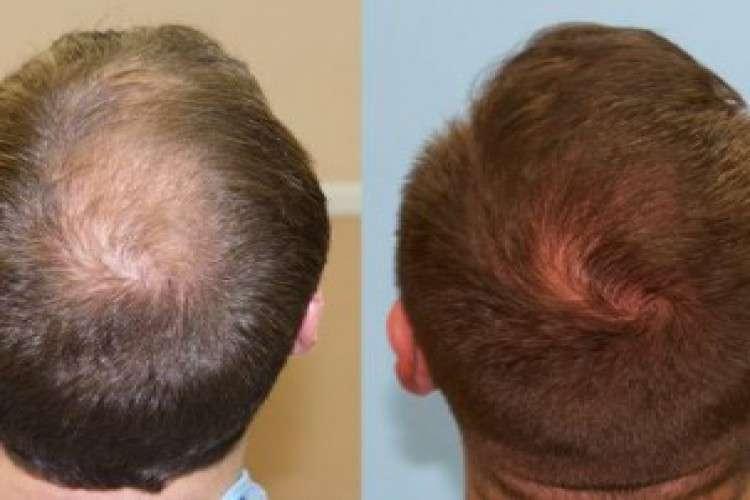 Hair growth treatment in himayat nagar