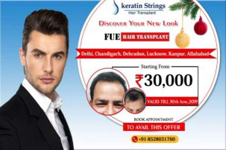 Hair transplant in agra   keratin strings hair clinic