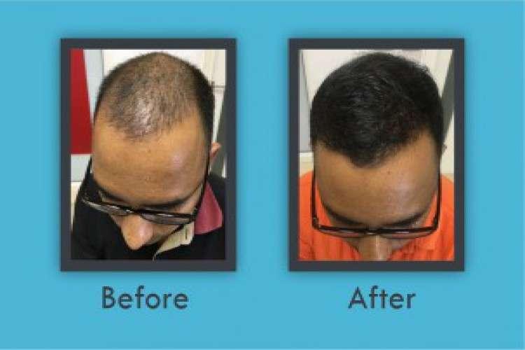 Hair transplantation in panipat