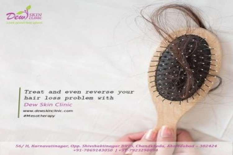 Hairfalltreatmentdoctor gandhinagar