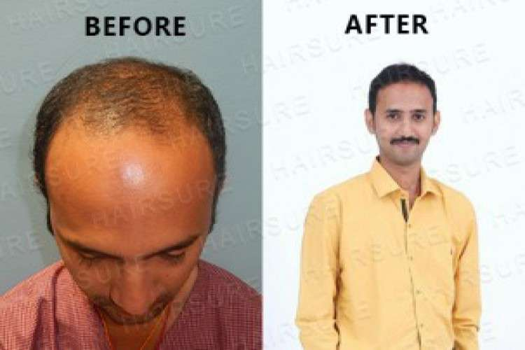 Hairsure best hair transplant clinic in hyderabad