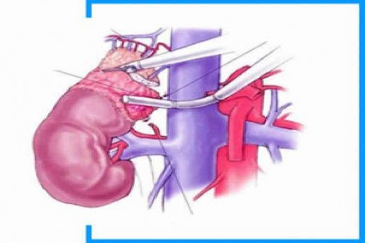 Intra abdominal laparoscopic surgeries