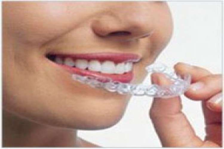 Invisible braces by dr milind darda thirty two smiles dental clinic