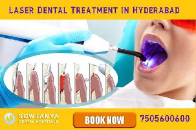 Laser dental treatment in hyderabad himayat nagar sowjanya dental