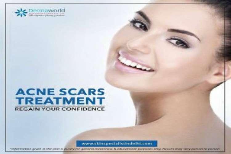 Laser hair removal in delhi dr rohit batra