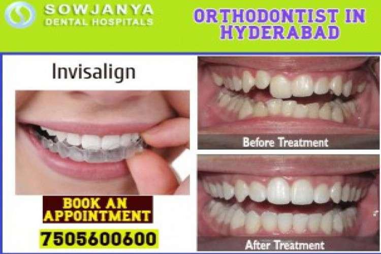 Orthodontist in hyderabad  best invisalign treatment in himayat nagar