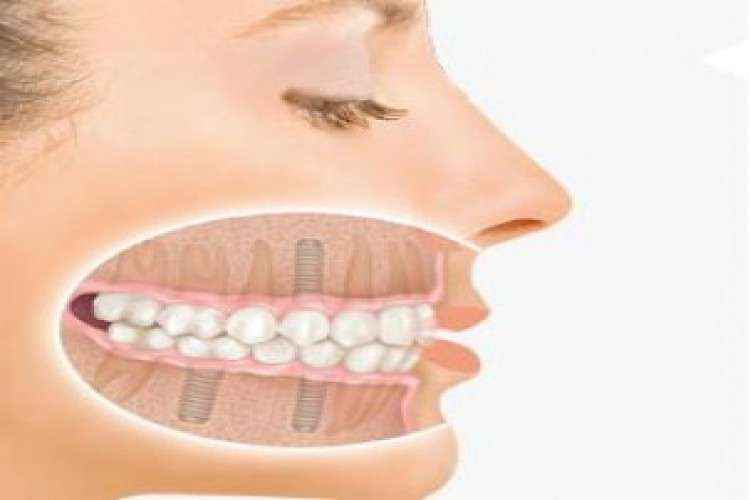 Painless root canal treatment in chandigarh