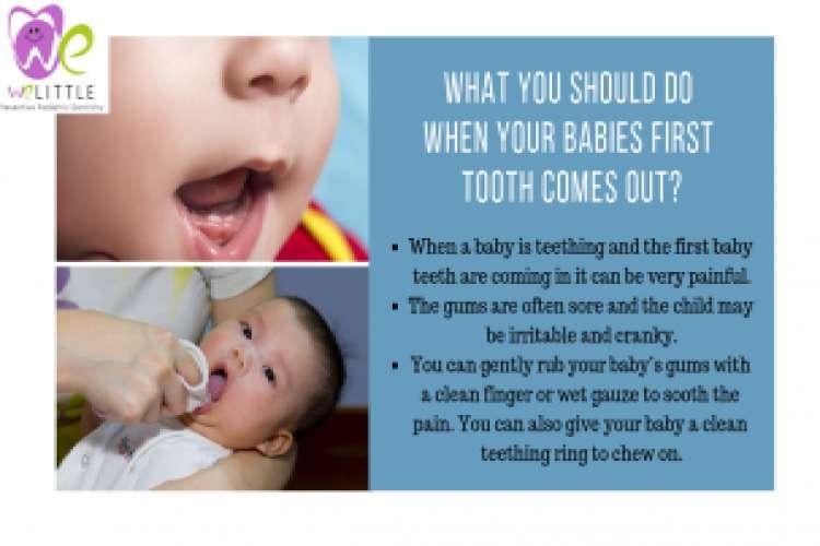 Pediatric dentistry in coimbatore