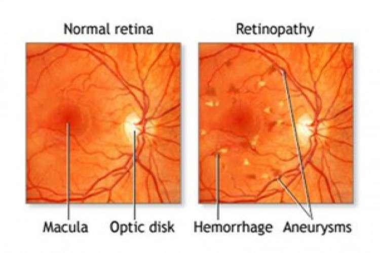 Retina specialist in bangalore