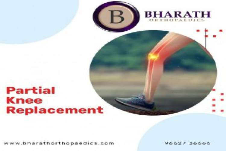 Revision knee replacement dr bharath