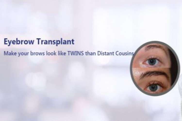 Rootz fue hair transplant clinic in bangalore hyderabad and vijayawada