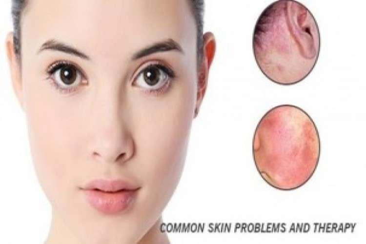 Skin specialist in himayat nagar hyderabad
