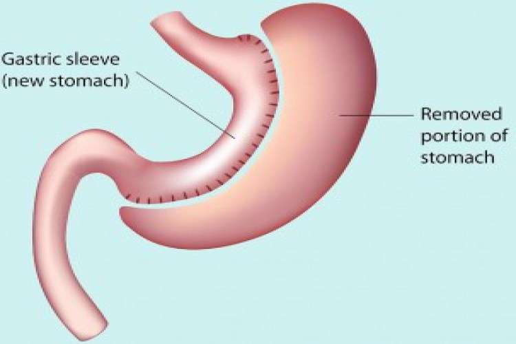 Sleeve gastrectomy bariatric surgery in india