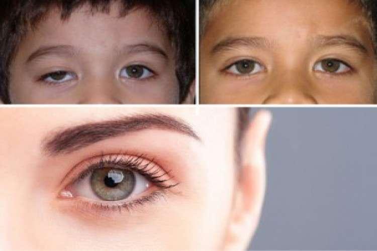 Squint eye treatment in bangalore