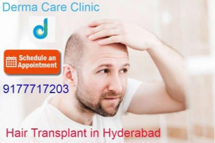 Top hair transplant in himayat nagar hyderabad